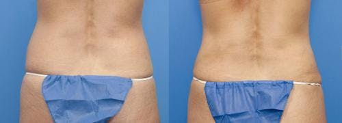 Liposuction Gallery - Patient 58172381 - Image 1