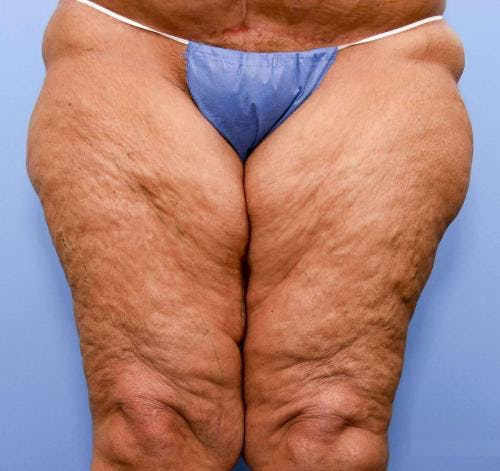 Thigh Lift Gallery - Patient 58172386 - Image 1