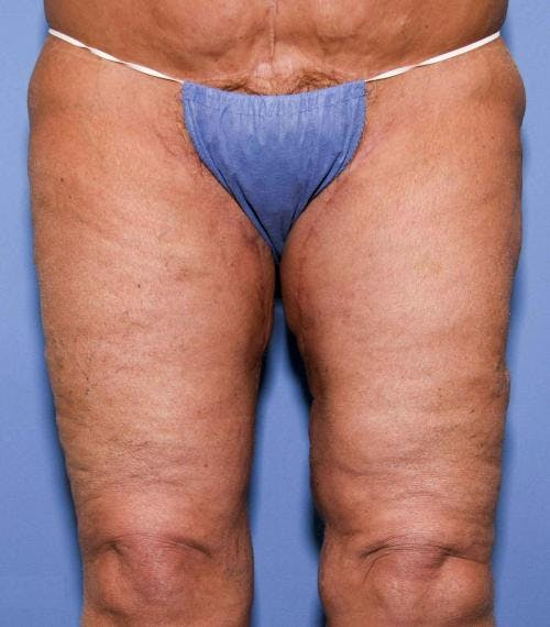 Thigh Lift Gallery - Patient 58172386 - Image 2