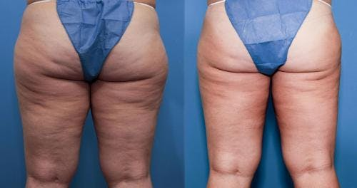 Liposuction Gallery - Patient 58172382 - Image 1