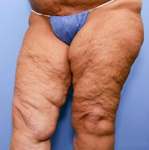 Thigh Lift Gallery - Patient 58172386 - Image 3