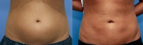 Liposuction Gallery - Patient 58172383 - Image 1