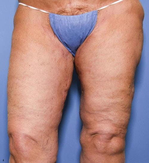 Thigh Lift Gallery - Patient 58172386 - Image 4