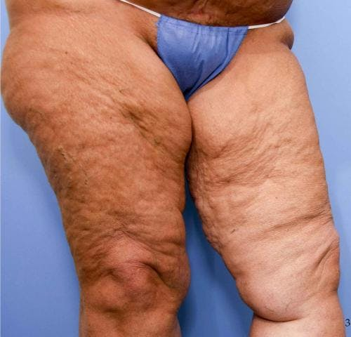 Thigh Lift Gallery - Patient 58172386 - Image 5