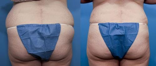 Liposuction Gallery - Patient 58172385 - Image 1