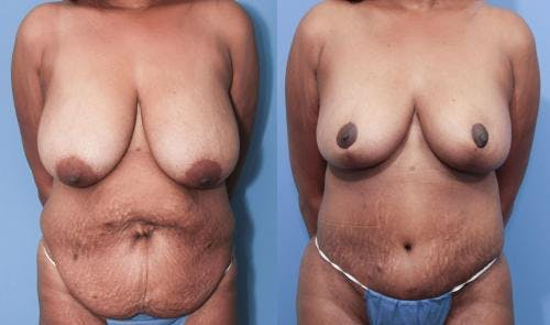Mommy Makeover Gallery - Patient 58172387 - Image 1