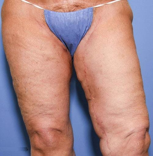 Thigh Lift Gallery - Patient 58172386 - Image 6