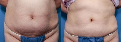 Liposuction Gallery - Patient 58172388 - Image 1