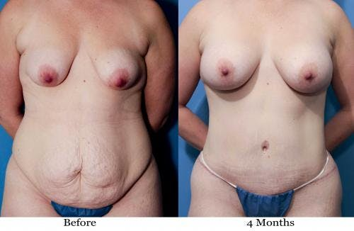 Mommy Makeover Gallery - Patient 58172389 - Image 1