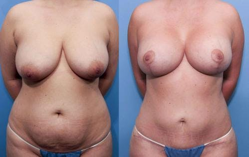 Mommy Makeover Gallery - Patient 58172390 - Image 1