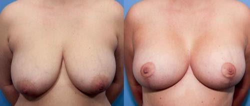 Mommy Makeover Gallery - Patient 58172390 - Image 2