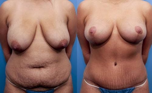 Mommy Makeover Gallery - Patient 58172391 - Image 1