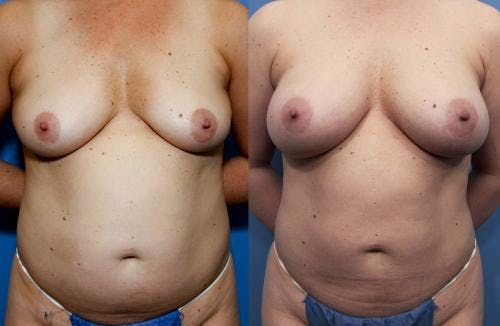 Mommy Makeover Gallery - Patient 58172392 - Image 1