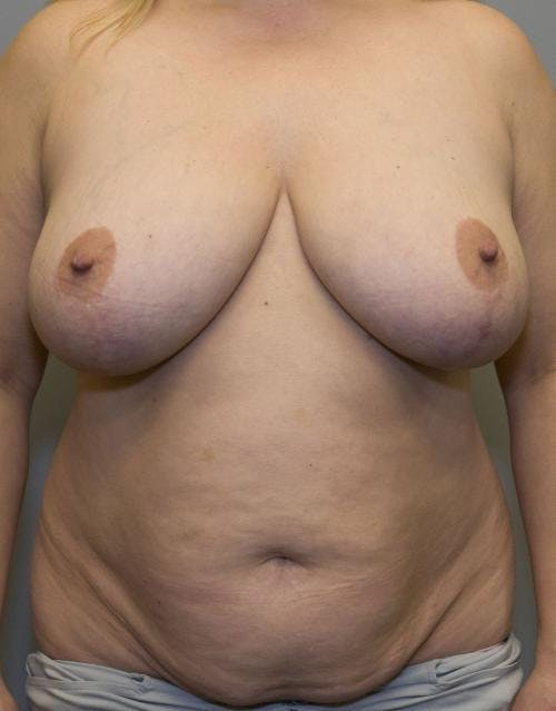 Mommy Makeover Gallery - Patient 58172393 - Image 1
