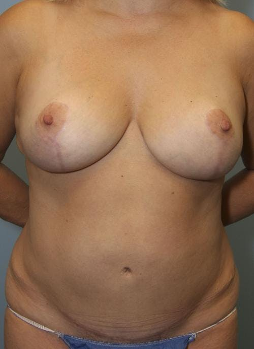 Mommy Makeover Gallery - Patient 58172393 - Image 2
