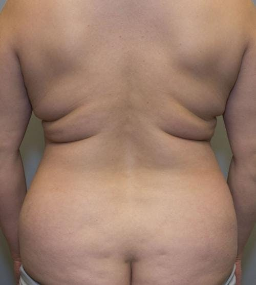 Mommy Makeover Gallery - Patient 58172393 - Image 3