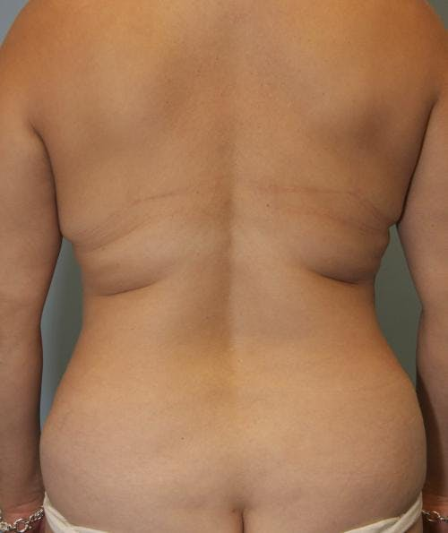 Mommy Makeover Gallery - Patient 58172393 - Image 4