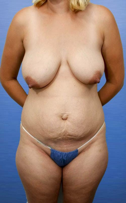 Mommy Makeover Gallery - Patient 58172395 - Image 1