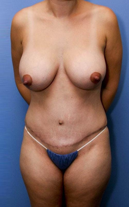 Mommy Makeover Gallery - Patient 58172395 - Image 2