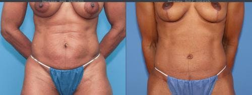 Tummy Tuck Gallery - Patient 58172396 - Image 1