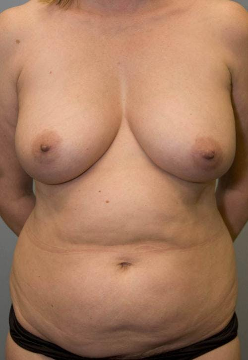 Mommy Makeover Gallery - Patient 58172397 - Image 1