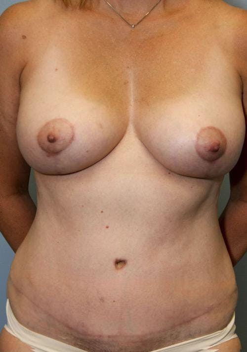 Mommy Makeover Gallery - Patient 58172397 - Image 2