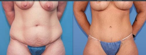 Tummy Tuck Gallery - Patient 58172398 - Image 2