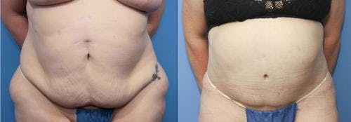 Tummy Tuck Gallery - Patient 58172400 - Image 1