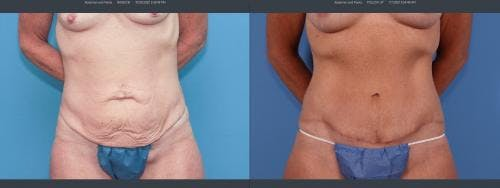 Tummy Tuck Gallery - Patient 58172401 - Image 1
