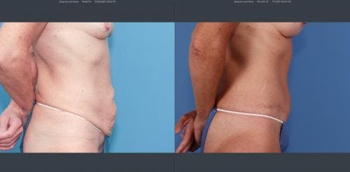 Tummy Tuck Gallery - Patient 58172401 - Image 2