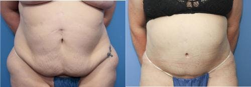 Tummy Tuck Gallery - Patient 58172403 - Image 1