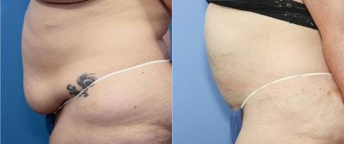Tummy Tuck Gallery - Patient 58172403 - Image 2