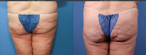 Brazilian Buttock Lift Gallery - Patient 58172402 - Image 1
