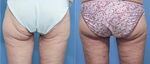 Brazilian Buttock Lift Gallery - Patient 58172404 - Image 1