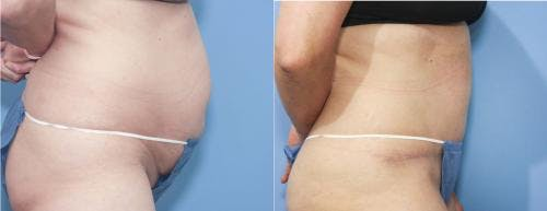 Tummy Tuck Gallery - Patient 58172405 - Image 2