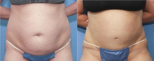 Tummy Tuck Gallery - Patient 58172405 - Image 1