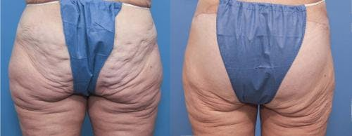 Brazilian Buttock Lift Gallery - Patient 58172406 - Image 1