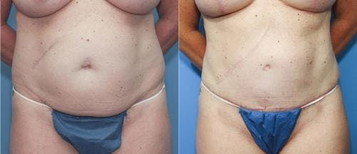 Tummy Tuck Gallery - Patient 58172407 - Image 1