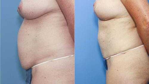 Tummy Tuck Gallery - Patient 58172407 - Image 2