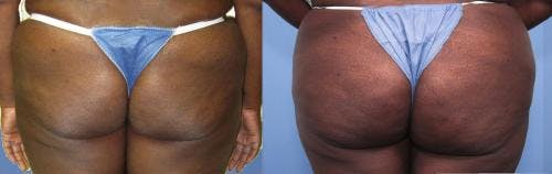 Brazilian Buttock Lift Gallery - Patient 58172408 - Image 1