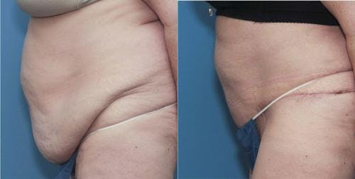 Tummy Tuck Gallery - Patient 58172409 - Image 2