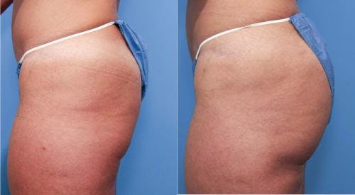 Brazilian Buttock Lift Gallery - Patient 58172410 - Image 2