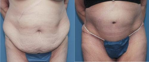 Tummy Tuck Gallery - Patient 58172409 - Image 1