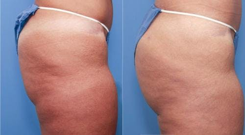 Brazilian Buttock Lift Gallery - Patient 58172410 - Image 3