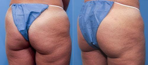 Brazilian Buttock Lift Gallery - Patient 58172410 - Image 1