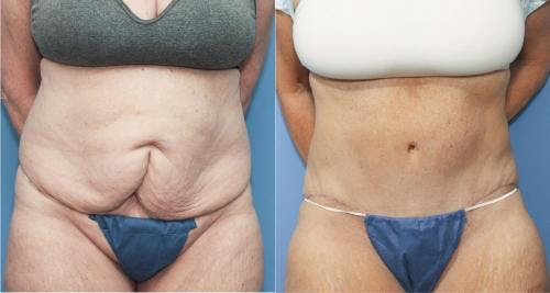 Tummy Tuck Gallery - Patient 58172411 - Image 1