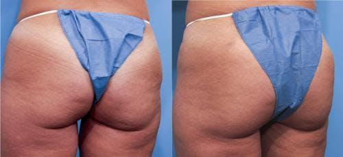 Brazilian Buttock Lift Gallery - Patient 58172410 - Image 4