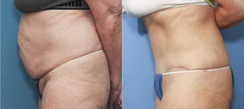 Tummy Tuck Gallery - Patient 58172411 - Image 2