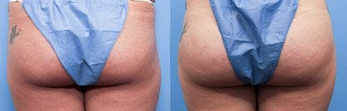 Brazilian Buttock Lift Gallery - Patient 58172412 - Image 1