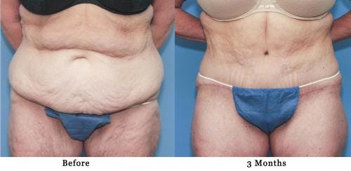 Tummy Tuck Gallery - Patient 58172413 - Image 1